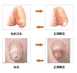 包皮包茎图片,包皮包茎区别,包皮包茎手术,包皮包茎咨询,包皮包茎费用