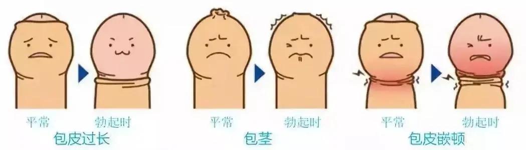 包皮包茎症状,包皮包茎区别,包皮包茎手术,包皮包茎危害