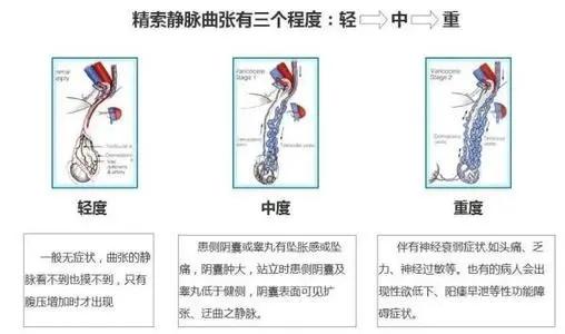 精索静脉曲张病因,预防精索静脉曲张,治精索静脉曲张,精索静脉曲张危害,精索静脉曲张影响