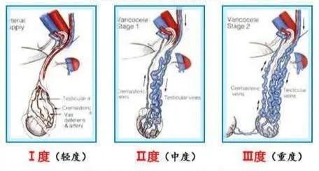 预防精索静脉曲张,精索静脉曲张病因,精索静脉曲张危害,治精索静脉曲张,精索静脉曲张影响